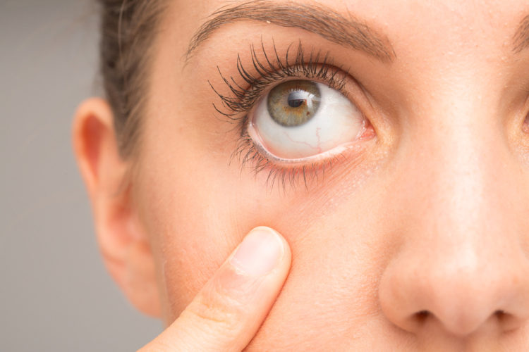 dry eye syndrome north london